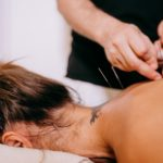 Five Facts You Might Not Know About Acupuncture